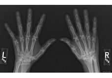 Advanced Cadaveric Wrist Arthroscopy